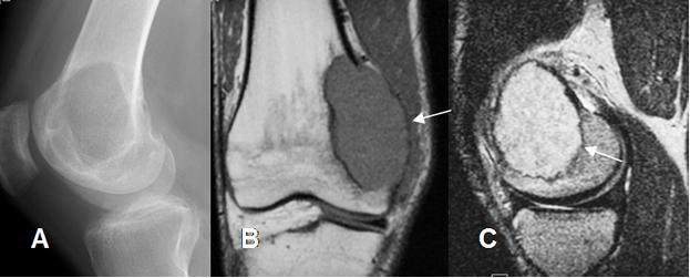 Tumor de Células Gigantes tipo de tumor de hueso benigno